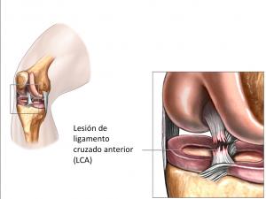 lesión de ligamento cruzado anterior